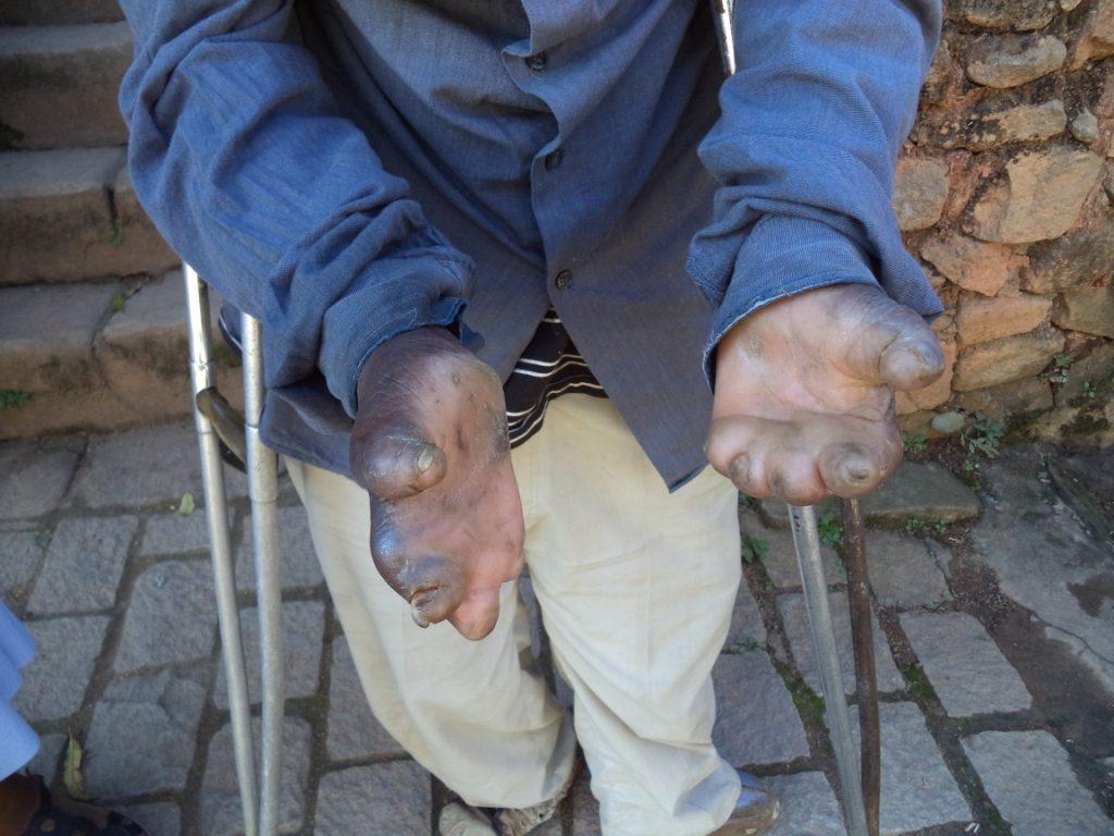 Marana : les ravages de la lèpre
