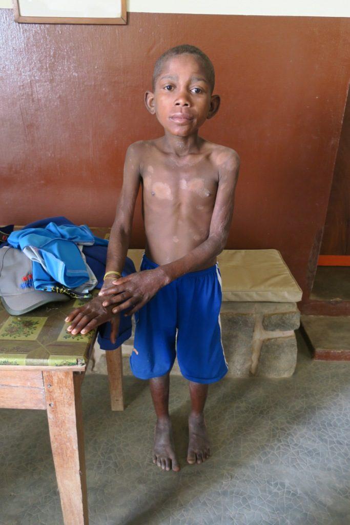 Marana-Rija13 ans apprend à l'instant que la lèpre l'a rattrapé